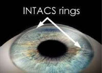 Intacs Rings After Implantation